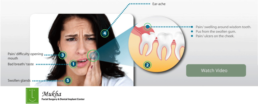 Wisdom tooth pain and infection